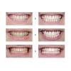 Профессиональное отбеливание зубов Чернигов